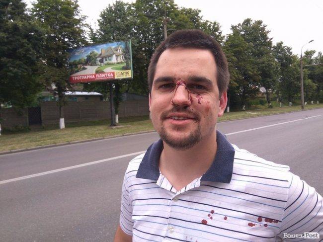 УЛуцьку побили атовця такерівника осередку «НацКорпусу»