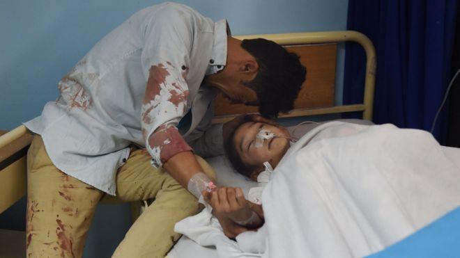Майже півсотні людей загинули внаслідок нападу смертника вКабулі