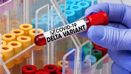 На Волині домінує штам COVID-19 «Дельта»: його виявили у 99% досліджених зразків - volynfeed.com